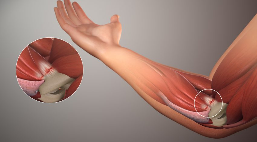 Shoulder and Elbow Pain
