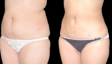 Revitalize Your Body Contours with Liposuction